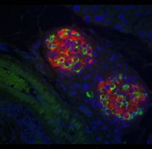Mouse islets stained for insulin (red) and somatostatin (green)(L. Zhang).